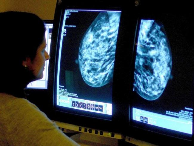 Figures have revealed some cancer targets are being missed across the Bradford district. Picture: PA