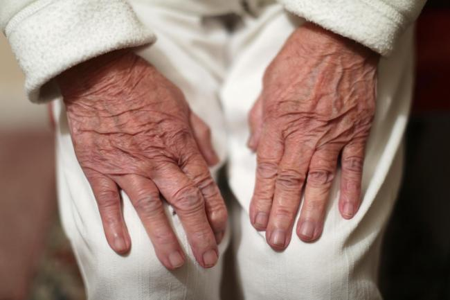 Alzheimer's disease is the most common cause of dementia