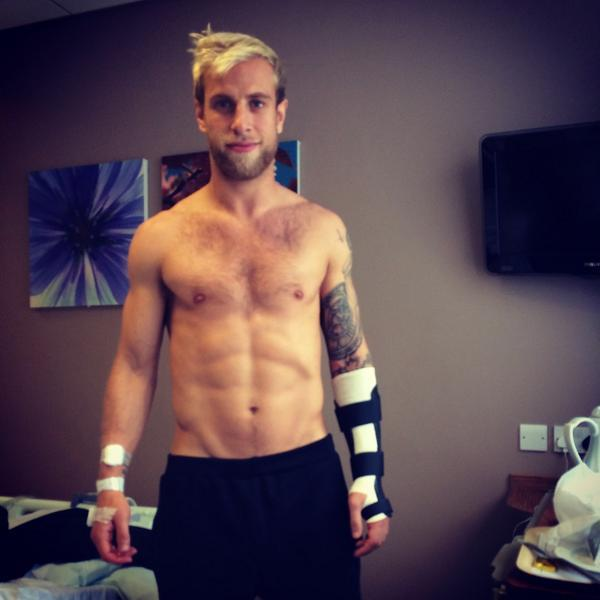 Andrew Davies poses with his left arm in a cast after this week's operation