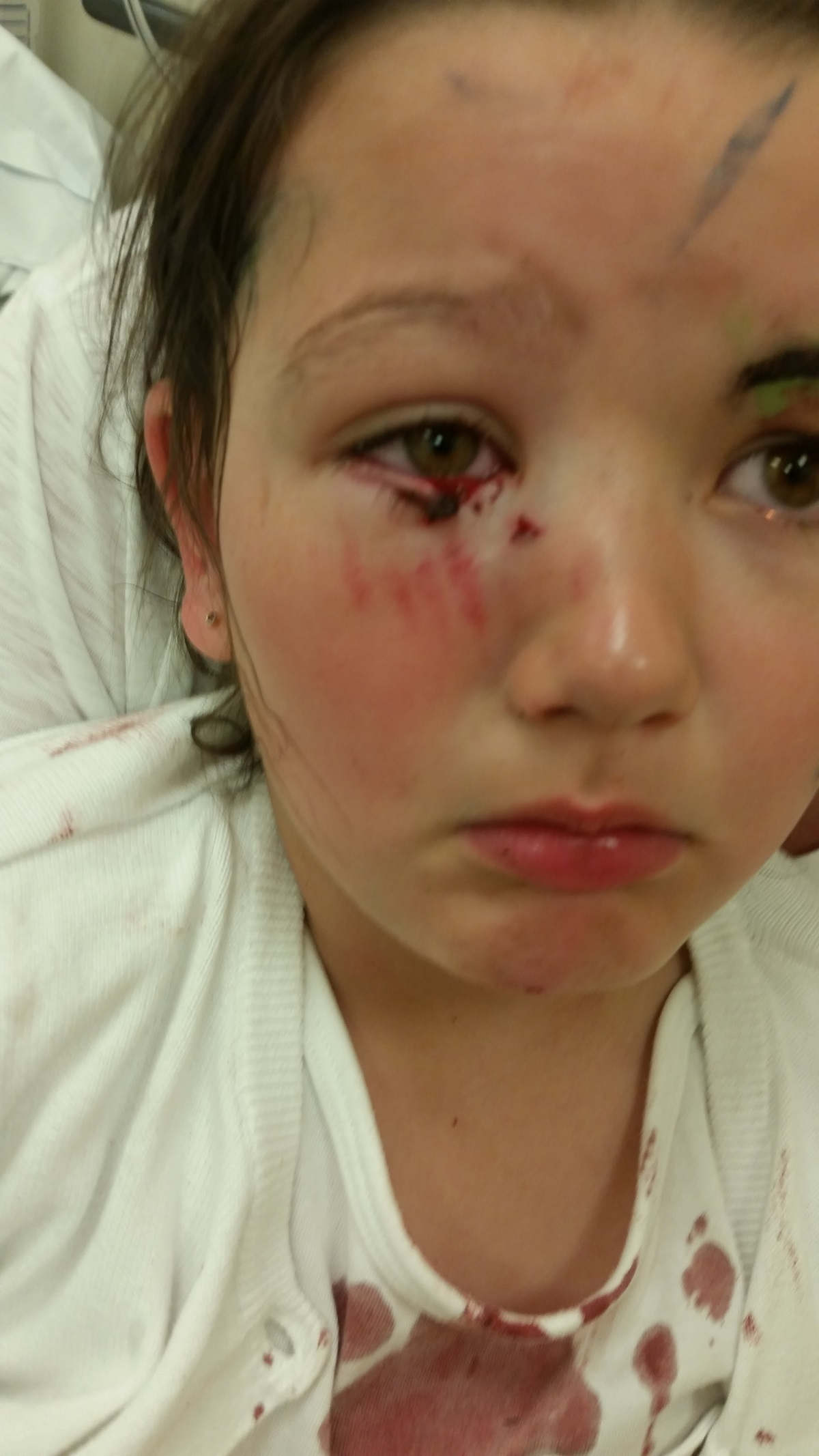 Five-year-old Nieve, from Clayton, was attacked by a Staffordshire bull terrier-type dog in Hebden Bridge